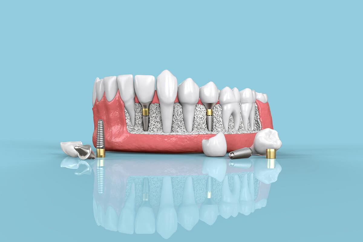 Dental Implants (Full Procedure)